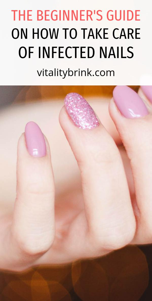 The Beginner's Guide On How To Take Care Of Infected Nails