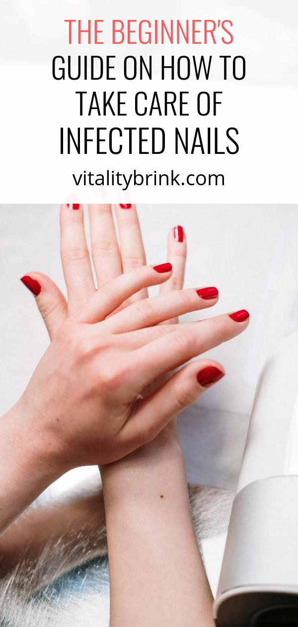 How To Take Care Of Infected Nails